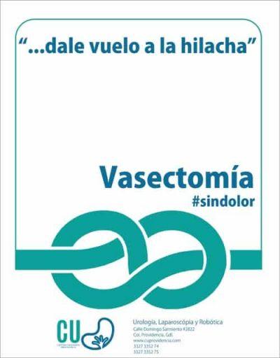 vasecto